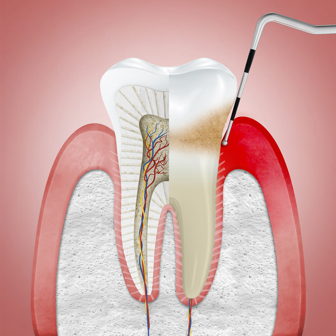 Treating gingivitis