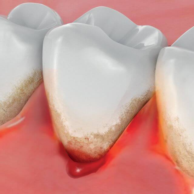 What does it mean when you have bleeding gums?